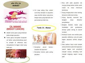 kanker payudara adalah