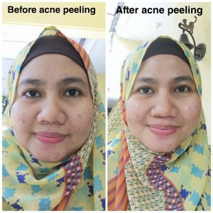 Before After acne peeling