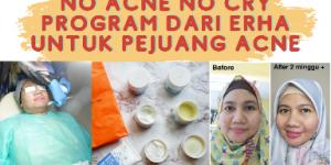 No Acne No Cry solusi jerawat aktif